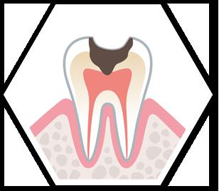 現在進行中のむし歯